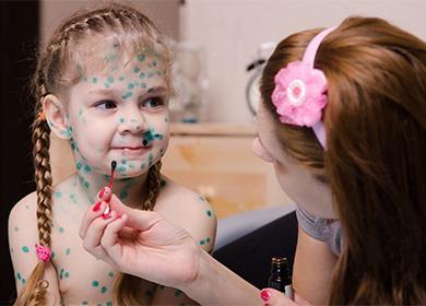 Чем отмыть зеленку с рук; как быстро оттереть зеленку с кожи лица, волос