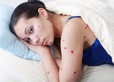 Женщина с красными точками