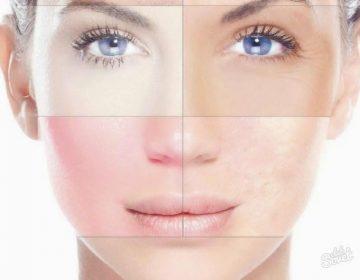 Типы кожи лица: как определить